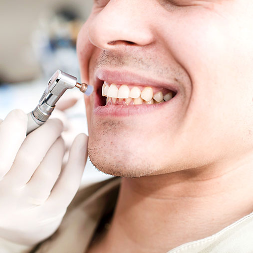 Scaling Polishing Germiston | Cleansmile