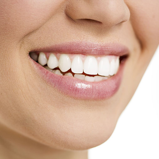 Teeth Whitening Germiston | Cleansmile